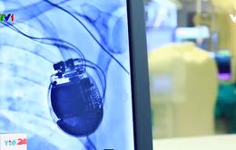 Đặt thành công máy tạo nhịp tim vĩnh viễn cho bệnh nhân