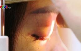 Mù mắt do tiêm filler tại hàng… sửa móng tay