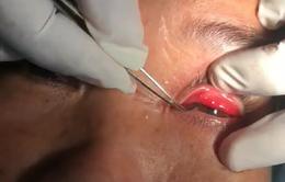 Xử trí một số tai nạn mắt tại nhà