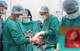 Bác sĩ tuyến huyện mổ cắt khối u xơ hơn 5kg