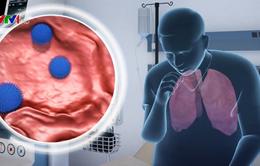 Thừa cân làm giảm hiệu quả của vaccine cúm