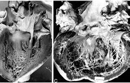 Phát triển thành công phương pháp điều trị đơn giản cho các bệnh nhân suy tim