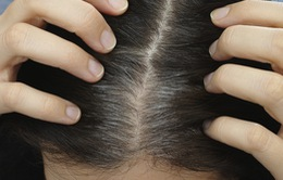 Nhận biết người bệnh tâm thần qua nang tóc