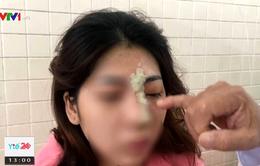 Cô gái trẻ bị mù mắt sau tiêm filler nâng mũi tại spa