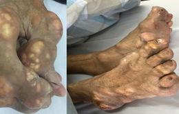 Hậu quả khôn lường khi tự ý điều trị gout bằng thuốc tại nhà