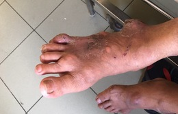 Chủ quan với vết lở ở chân, người đàn ông mắc gout phải vội nhập viện
