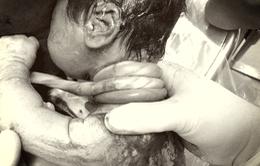 Hy hữu: Một em bé chào đời với dây rốn quấn cổ 4 vòng