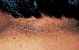 12 dấu hiệu ở da cảnh báo bệnh đái tháo đường