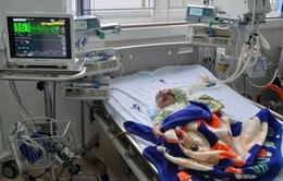 Cứu bé 5 tháng tuổi sốc tim, nhiễm trùng huyết nguy kịch