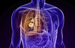 Khối u phổi phát triển bằng cách tấn công vi khuẩn trong phổi