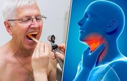 Đau họng kéo dài có thể là dấu hiệu ung thư