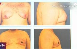 Nỗi khổ đàn ông mắc chứng ngực to
