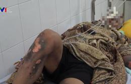 Thanh niên 16 tuổi bị bỏng nặng vì sử dụng điện thoại trong lúc sạc