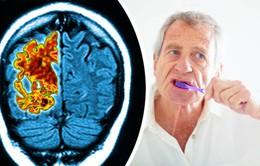 Bệnh răng lợi và sự tiến triển của bệnh Alzheimer