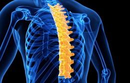Các phương pháp hữu hiệu điều trị bệnh cong vẹo cột sống
