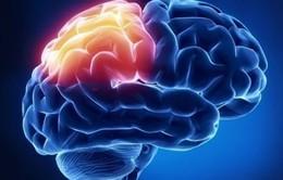 Nguy cơ mắc bệnh tâm thần phân liệt não của thanh thiếu niên