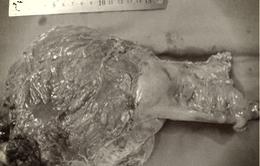 Khó đại tiện, người đàn ông 57 tuổi phát hiện khối u trực tràng khổng lồ