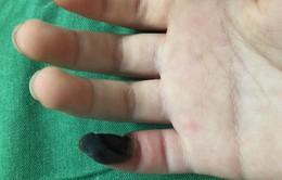 Bé gái 6 tuổi bị hoại tử ngón tay do tự chữa mụn cóc tại nhà