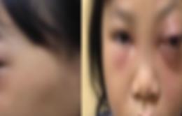 Bé gái bị lồi mắt do biến chứng viêm mũi xoang cấp