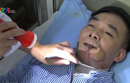 Nguy cơ ung thư khoang miệng vì hút thuốc lá