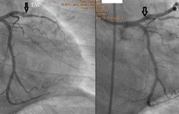 Cứu sống ngoạn mục bệnh nhân ngưng tim trên đường chuyển viện