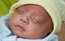 Nuôi sống bé sơ sinh non nặng 500 gram chỉ nhỏ bằng bàn tay
