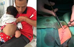 Cắt bỏ khối u đeo bám 4 năm cho bé gái người dân tộc Mông