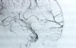 Cảnh báo xuất huyết não từ những cơn đau đầu