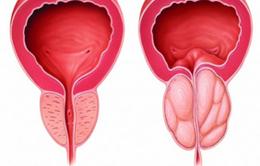 Biểu hiện phì đại tuyến tiền liệt nam giới cần biết