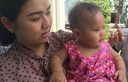 Giải cứu bé 8 tháng tuổi nghi bị mẹ nuôi bạo hành