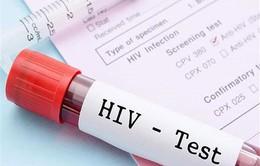 Khi tham gia BHYT, người nhiễm HIV có được chi trả 100% tiền thuốc?