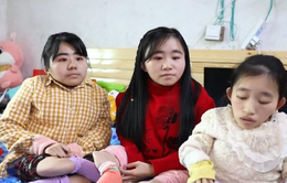 Ba chị em bị bệnh xương thủy tinh trở thành ngôi sao mạng xã hội