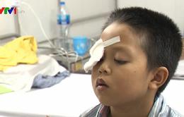 Nguy cơ bị mù do tự ý dùng thuốc nhỏ mắt chứa corticoid