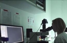 Loại bỏ vi khuẩn HP với phương pháp Pylopass