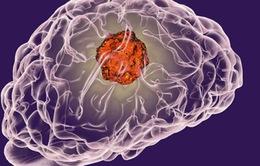 Phát triển phân tử mồi nhử giúp hạn chế di căn ung thư
