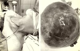 Giải thoát một cụ bà khỏi khối bướu cổ nặng 1kg