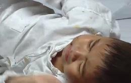 Bé trai 4 tuổi ở Hà Nam bị chó nhà nuôi cắn: Sức khỏe đã ổn định