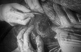 Bánh nhau ăn sâu gây nứt tử cung sản phụ