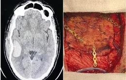 Xuyên đêm cấp cứu bệnh nhân lún xương sọ, chảy máu não vì đá bóng