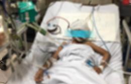 Dị dạng mạch não bẩm sinh, bé gái 9 tuổi suýt nguy kịch vì xuất huyết não