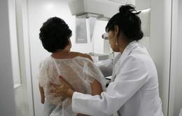 Bệnh nhân ung thư vú ở Trung Quốc ngày càng có tỷ lệ sống cao