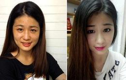 Hạnh phúc nhờ kem trị nám White Shinno Nhật Bản