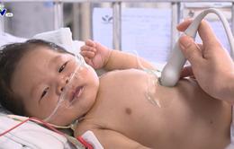 Bệnh nhi tim bẩm sinh phức tạp 2 tháng tuổi thoi thóp chờ sự giúp đỡ