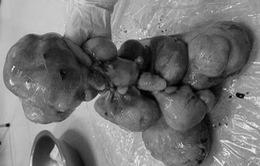 3 tiếng phẫu thuật bóc dính khối u xơ tử cung nặng bằng 2 em bé sơ sinh
