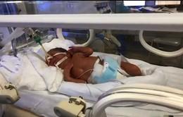 Em bé sinh ra từ người mẹ ung thư giai đoạn cuối: Bước đầu đây là ca sinh mẹ tròn con vuông