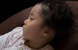 Một số phương pháp xử lý mồ hôi trộm cho trẻ