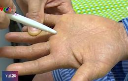 Sai lầm trong điều trị bệnh vảy nến có nguy cơ mắc ung thư da?