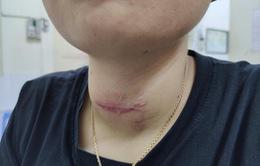 Tin lời thầy lang chữa bướu cổ, người phụ nữ ôm cổ nhiễm trùng nhập viện