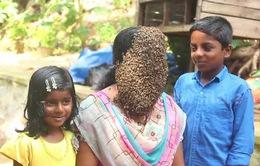 Để ong bâu quanh mặt nhằm nâng cao ý thức bảo tồn thiên nhiên