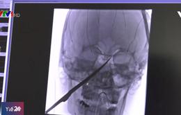 Cậu bé Mỹ 15 tuổi bị dao đâm xuyên hộp sọ sống sót kỳ diệu